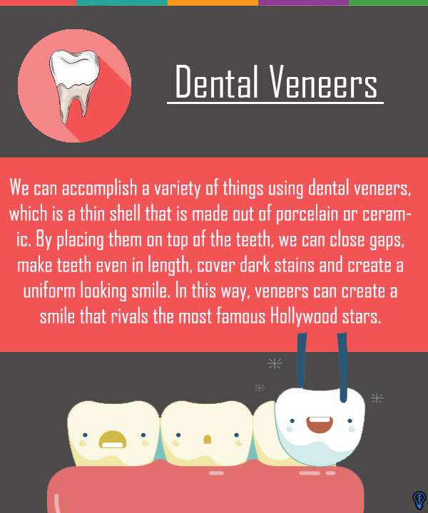 Dental Veneers and Dental Laminates Columbia, SC