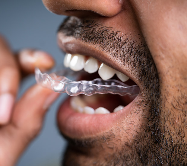 Columbia Which is Better Invisalign or Braces